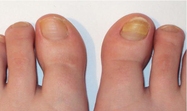 грибок ногтей, начальная стадия