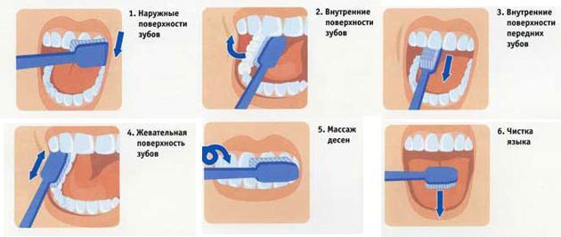 как правильно чистить зубы - схема, профилактика кариеса, уберечь зубы
