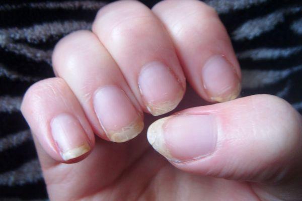 слабые ногти, ломкие ногти, причины, как укрепить, что делать