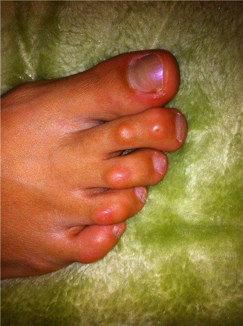 мозоли на пальцах ног, избежать появления
